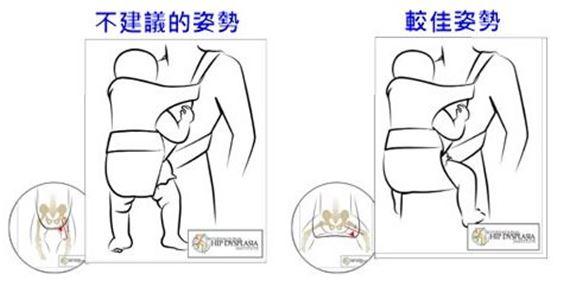 國際髖關節不良協會推薦背巾坐姿